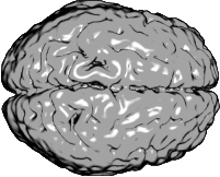 What would happen to your memories or personality if half of your brain were surgically removed? Don't be so sure...